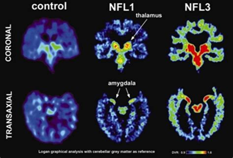 Concussions and the National Football League NFL